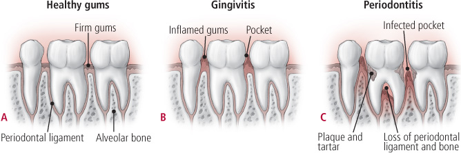 The Main Cause Of Periodontal Disease If Formation Bacterial Plaque And Calculus On Teeth Allowed To Build Up Pockets Form Between Gum